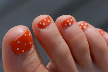 Виды грибка ногтей на ногах формы, классификация,
