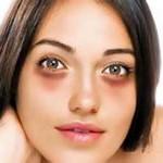 Как избавиться от кругов под глазами – советы моего косметолога