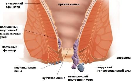 Геморрой после родов чем лечить