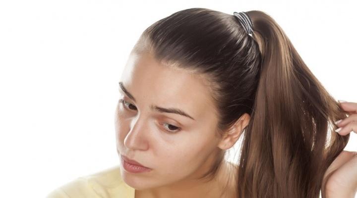 Что такое андрогенная алопеция - симптомы алопеции, фото